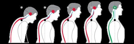 chiropracticbiophysics-posture